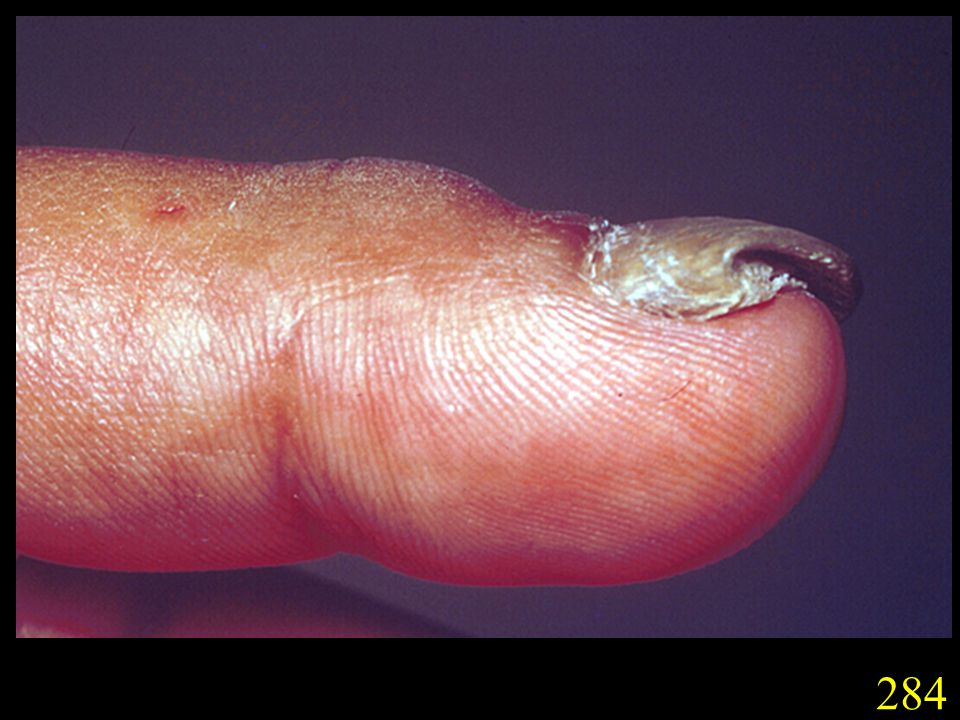 284. T. tonsurans infection of a nail (tinea unguium).