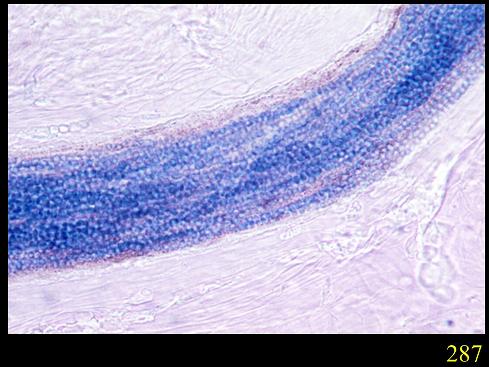 287. Typical large spored endothrix invasion of hair caused by T