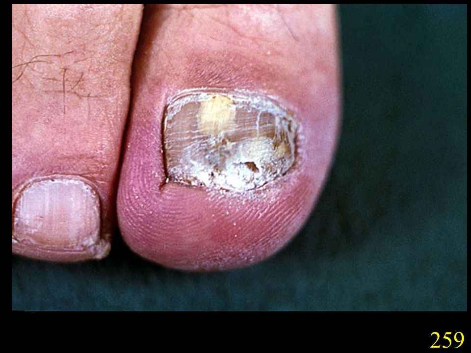 259. Onychomycosis caused by T. rubrum.