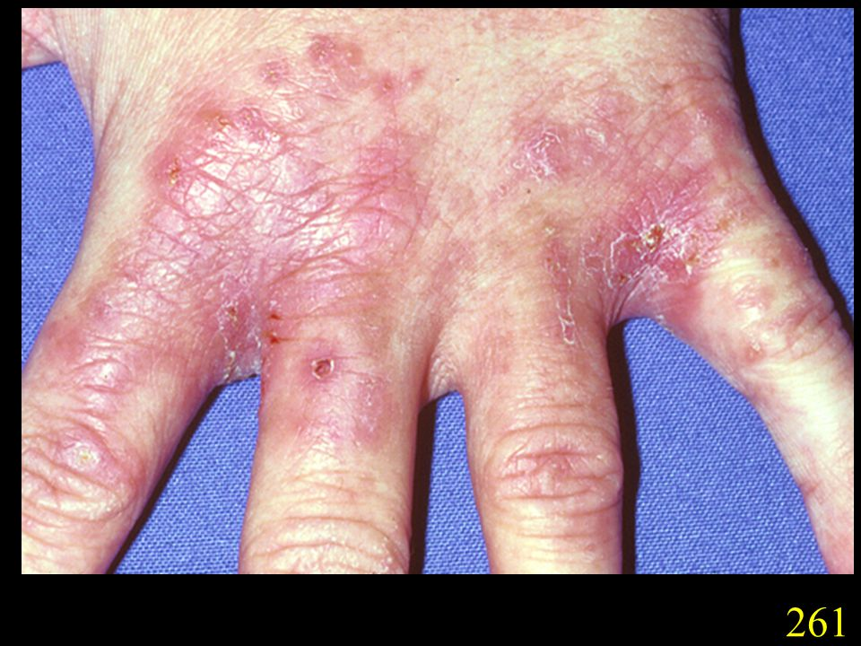 261. Chronic non-inflammatory tinea of a finger (260) and hand (261), caused by T. rubrum. (Courtesy Drs G. Donald and D. Hill, Adelaide, S.A.).