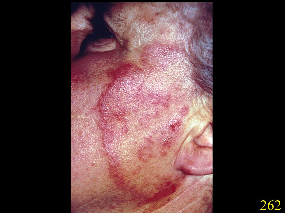 262. Facial lesion caused by T