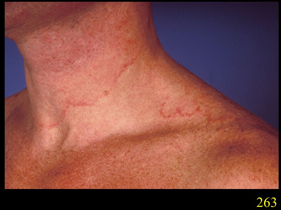 263. Tinea corporis caused by T