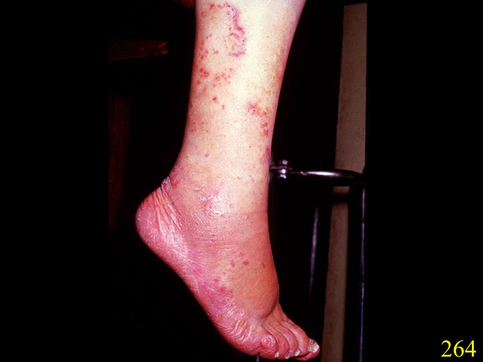 264. T. rubrum infection of the foot and calf.