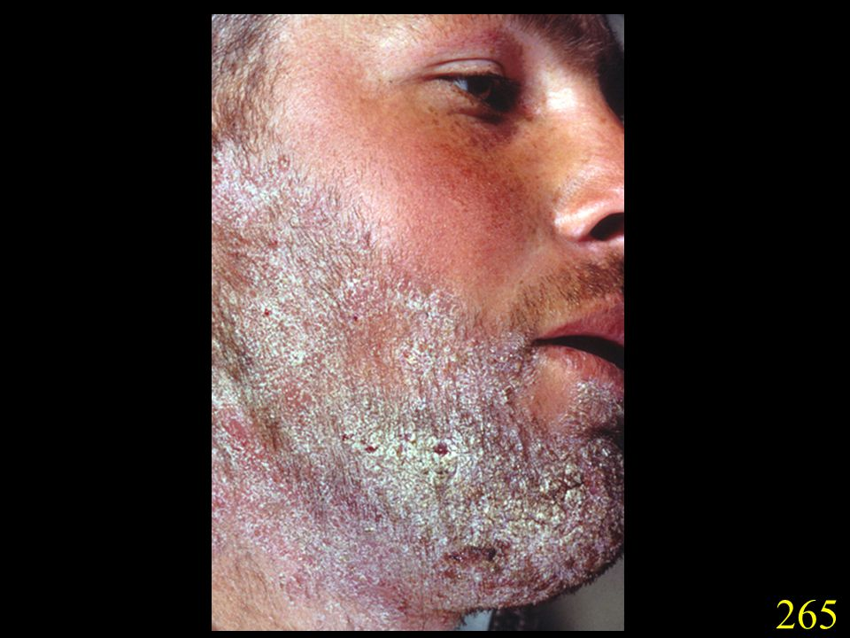265. Tinea barbae caused by T. rubrum. (Slides courtesy Drs G