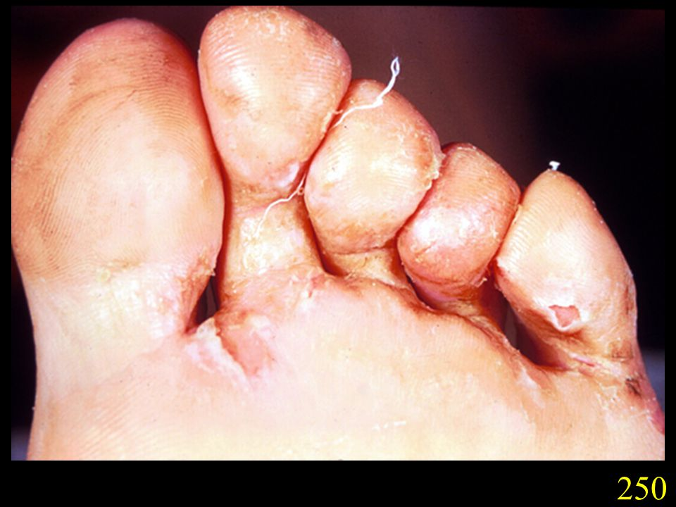 250. Tinea pedis caused by T. rubrum showing scaling macerated skin between the toes. Note compare slide 250 with slide 062 showing candidiasis of the interdigital space (Slides courtesy Drs G. Donald and D. Hill, Adelaide, S.A.).