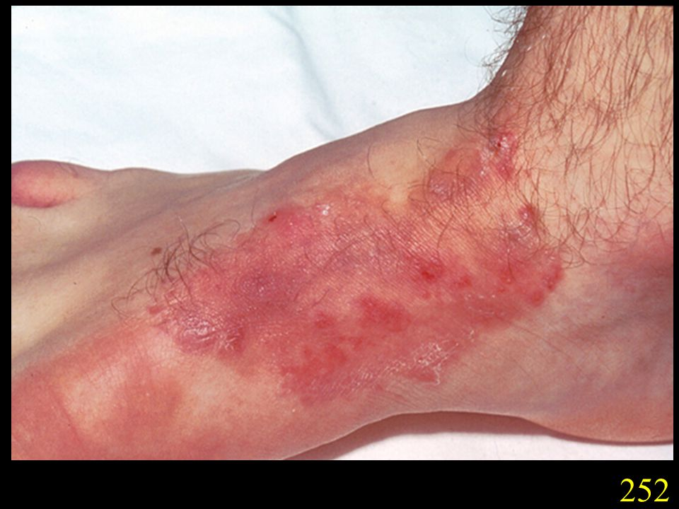 252. Atopic tinea pedis following treatment with betnovate, caused by T. rubrum. (Courtesy Dr D. Hill, Adelaide, S.A.).