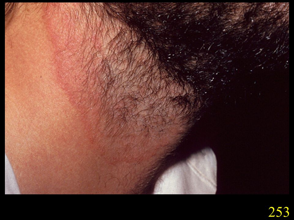 253. Tinea of the groin (tinea cruris) caused by T. rubrum
