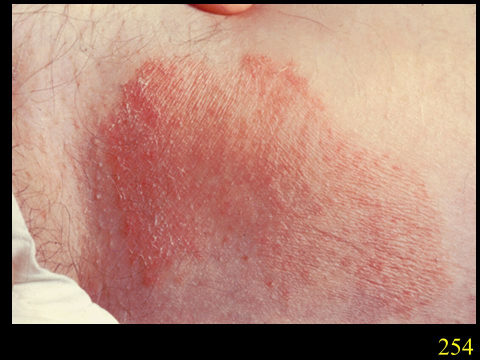 254. Tinea of the groin (tinea cruris) caused by T. rubrum