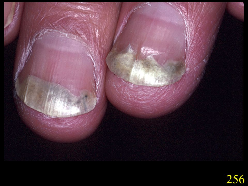 256. T. rubrum infection of finger nails (slide 256) and toe nails (slide 257). Note nails become discoloured and brittle.