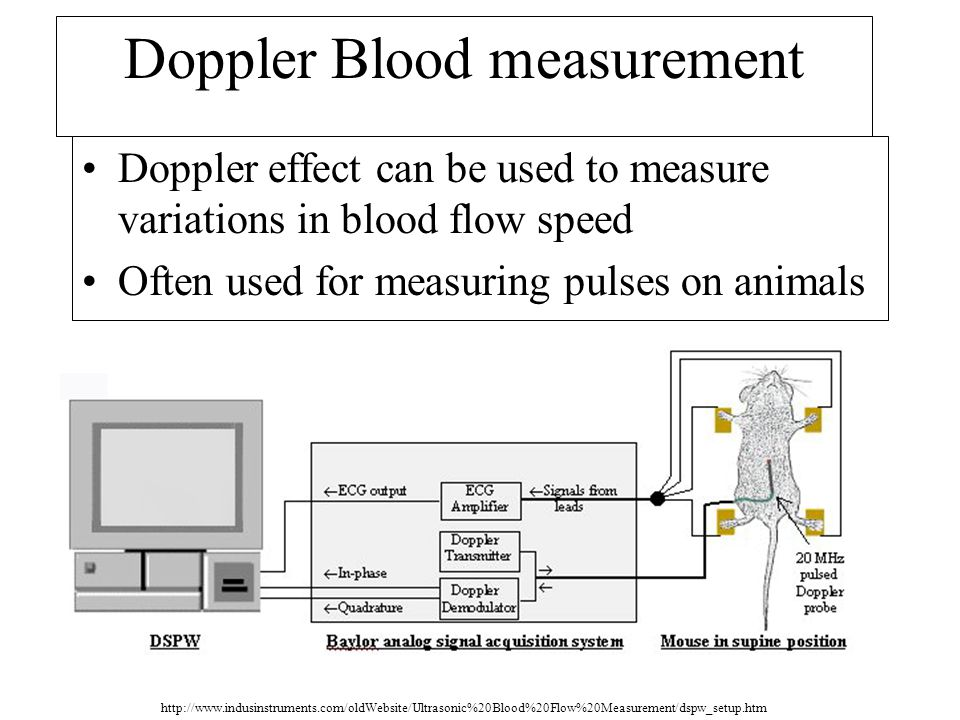 Doppler Blood measurement