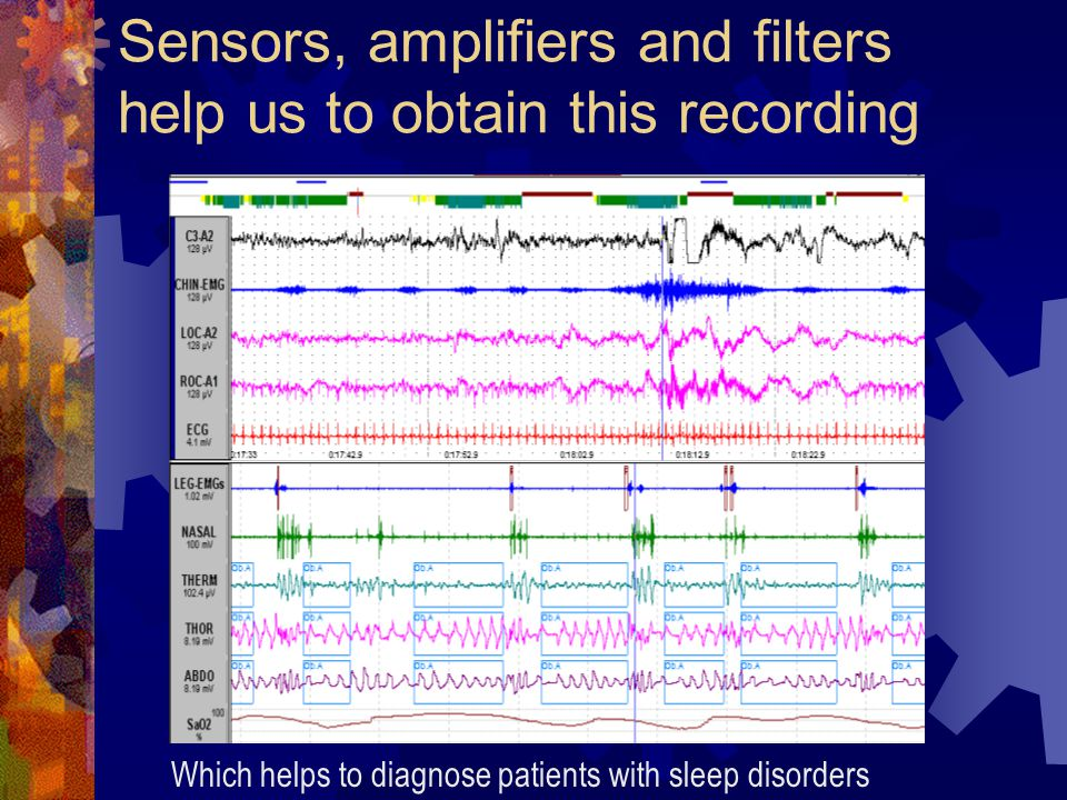 Sensors, amplifiers and filters help us to obtain this recording