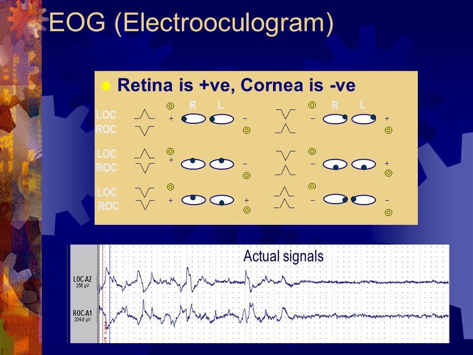 EOG (Electrooculogram)