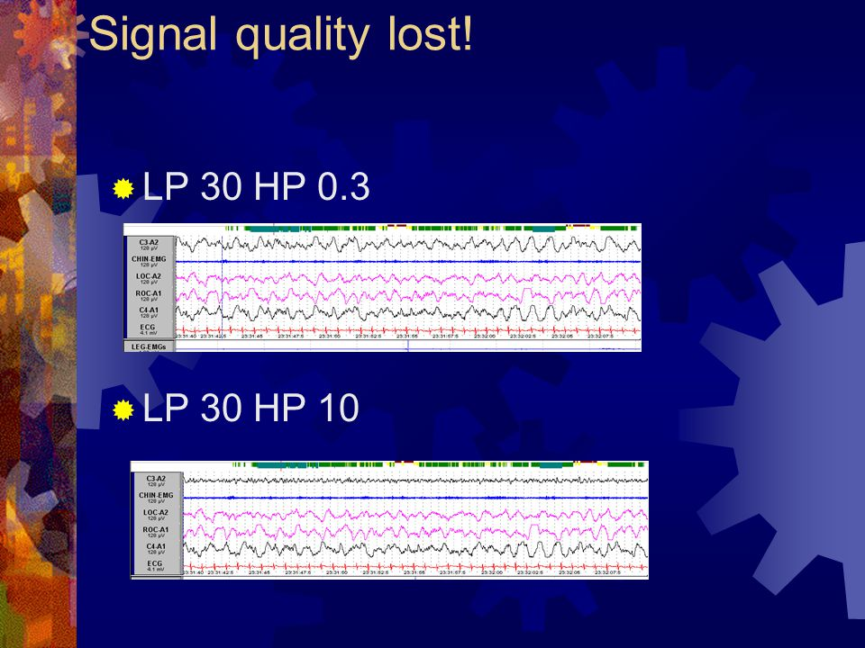 Signal quality lost! LP 30 HP 0.3 LP 30 HP 10