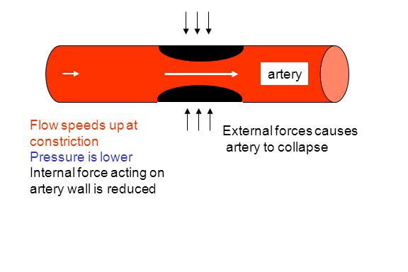 artery Flow speeds up at constriction. Pressure is lower. Internal force acting on artery wall is reduced.