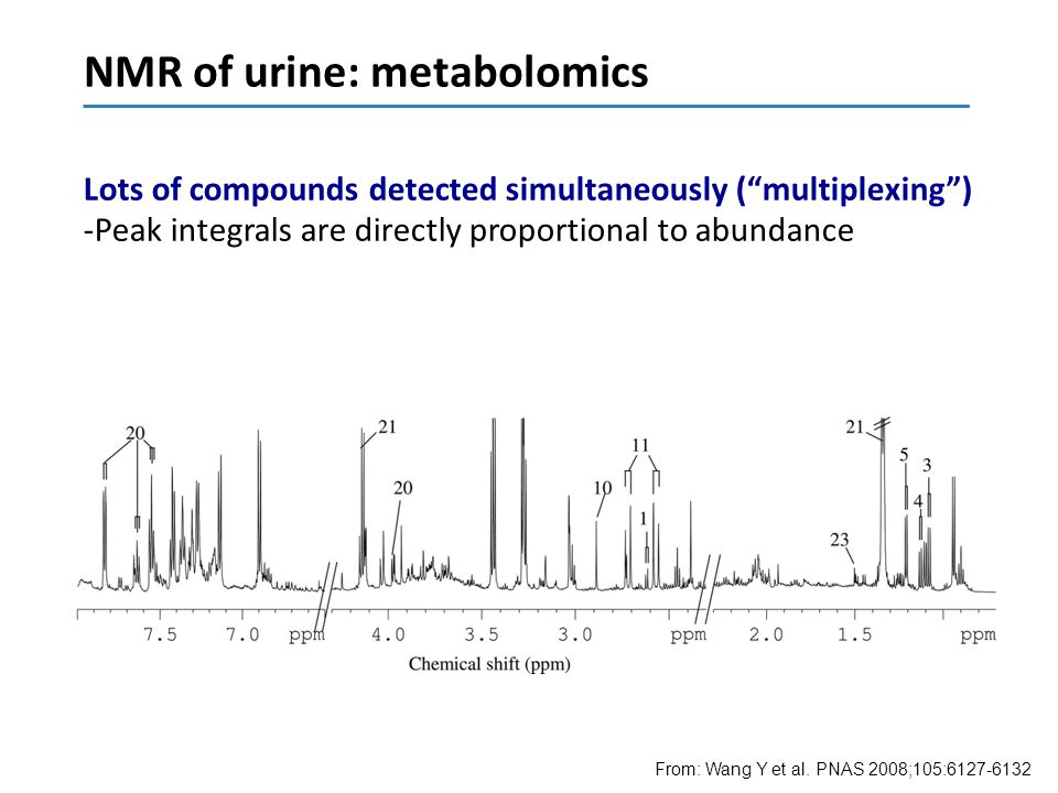 NMR of urine: metabolomics