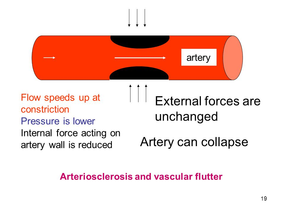 External forces are unchanged Artery can collapse artery
