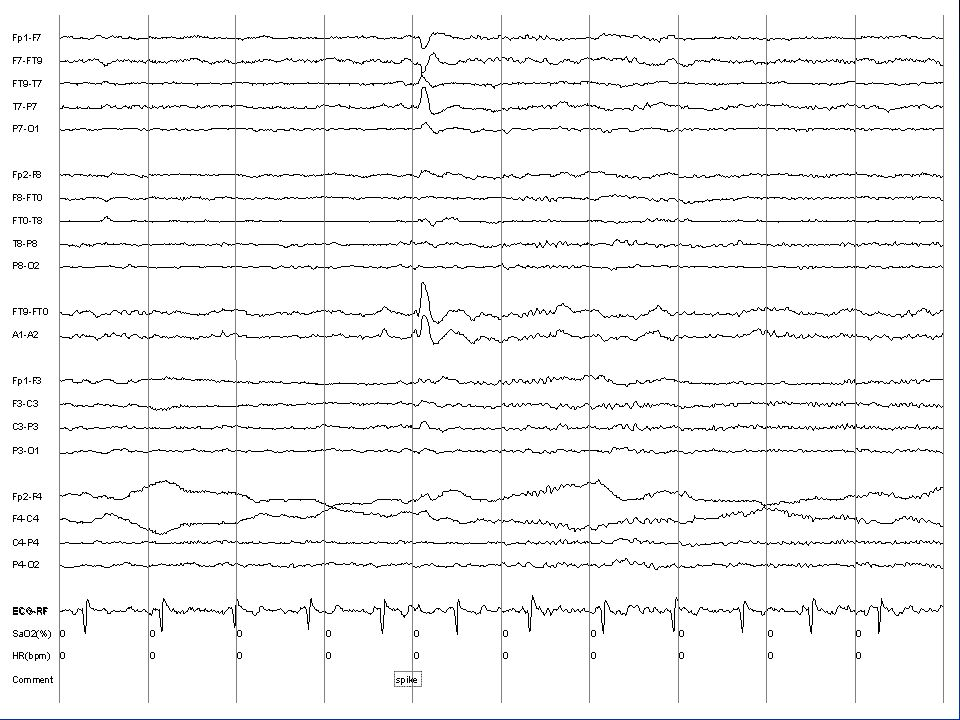EEG Slide 99-10-31/ROUTINE 7