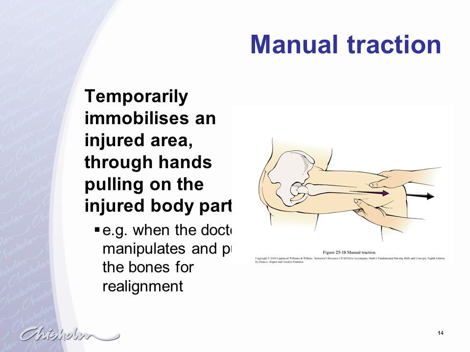 Manual traction Temporarily immobilises an injured area, through hands pulling on the injured body part.