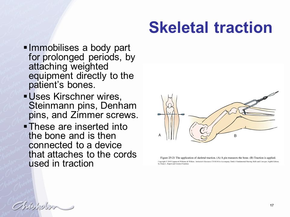 Skeletal traction Immobilises a body part for prolonged periods, by attaching weighted equipment directly to the patient's bones.