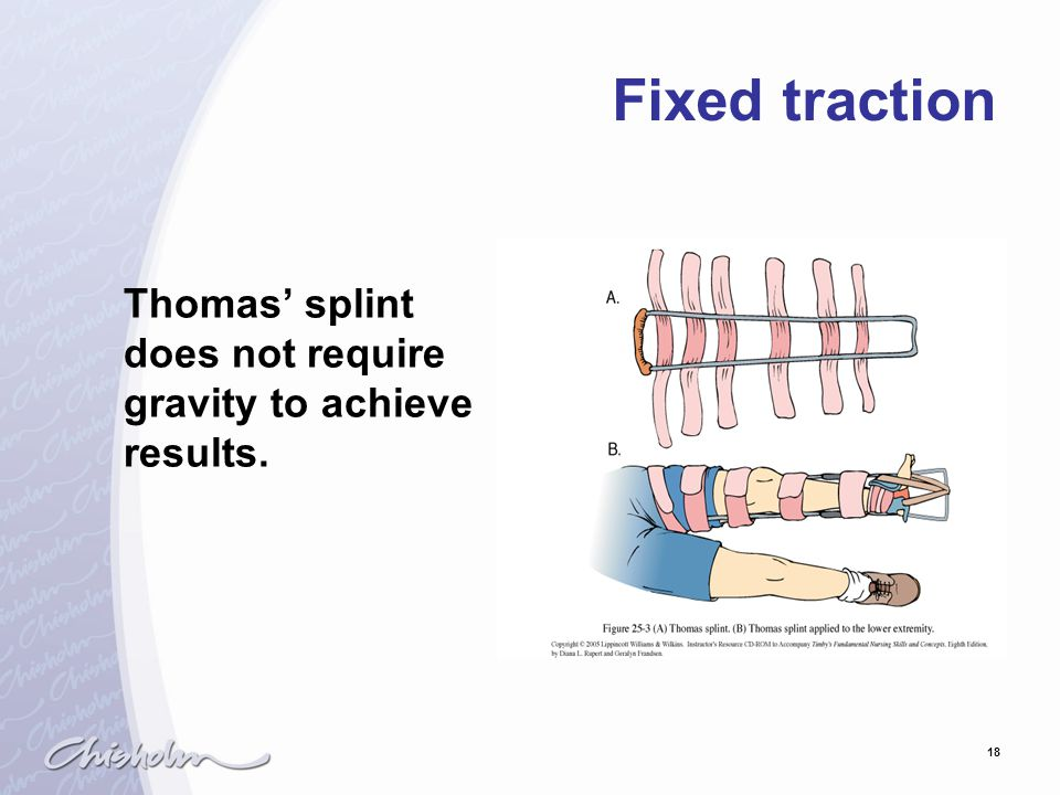 Fixed traction Thomas' splint does not require gravity to achieve results.