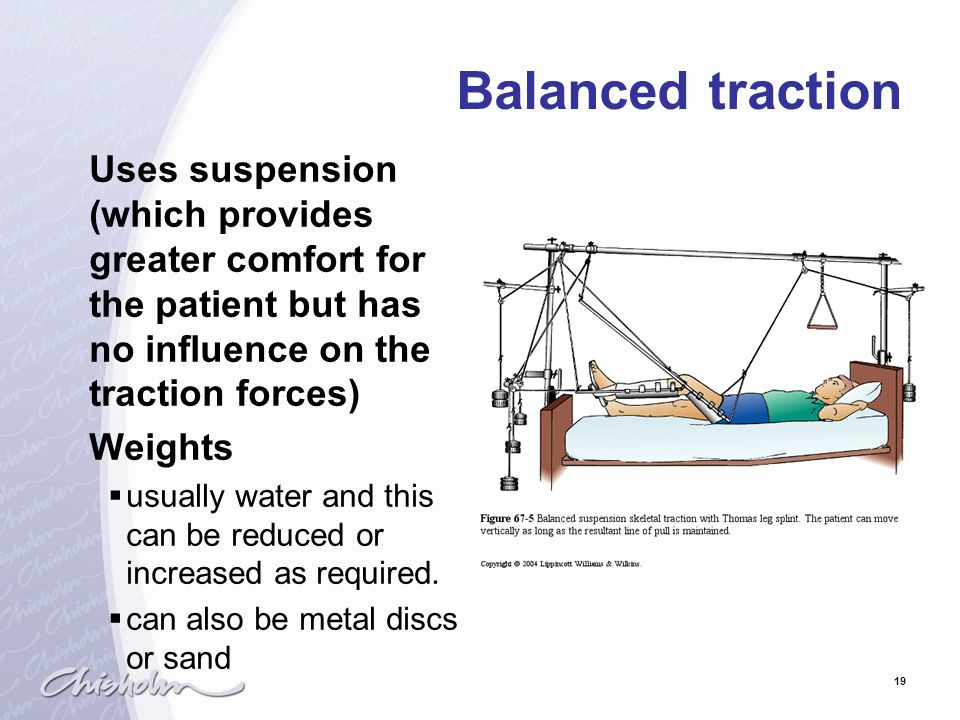 Balanced traction Uses suspension (which provides greater comfort for the patient but has no influence on the traction forces)