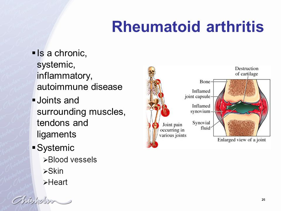 Rheumatoid arthritis Is a chronic, systemic, inflammatory, autoimmune disease. Joints and surrounding muscles, tendons and ligaments.