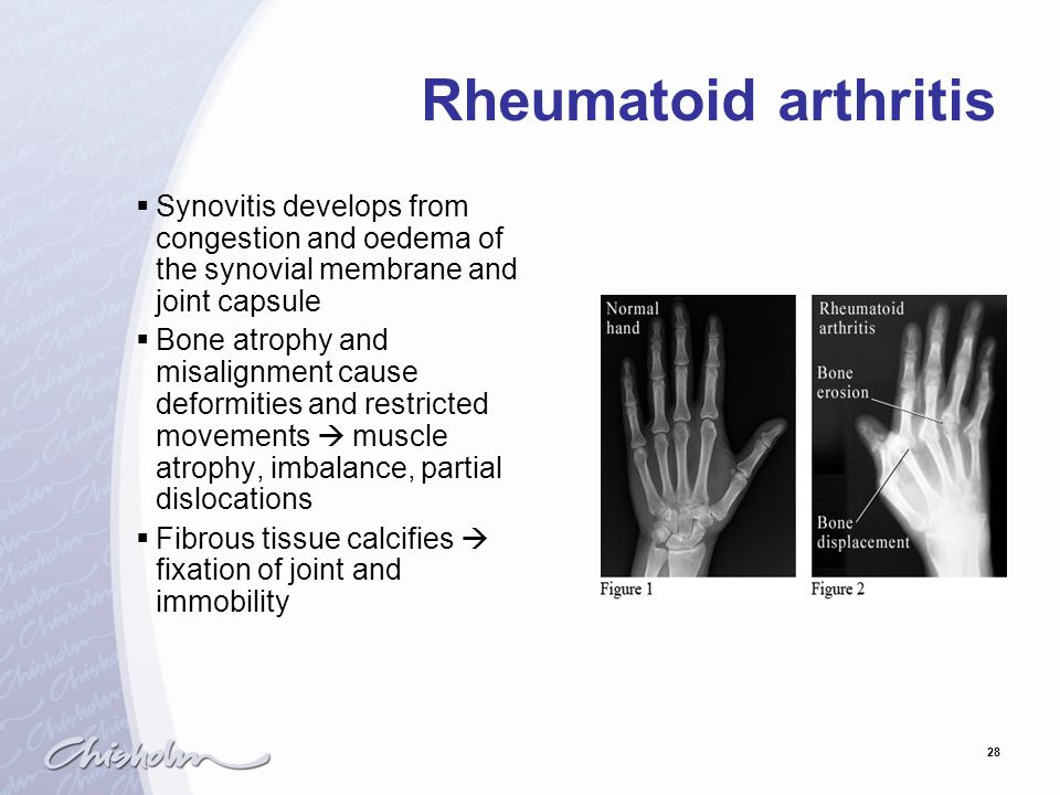 Rheumatoid arthritis Synovitis develops from congestion and oedema of the synovial membrane and joint capsule.