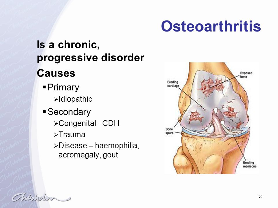 Osteoarthritis Is a chronic, progressive disorder Causes Primary