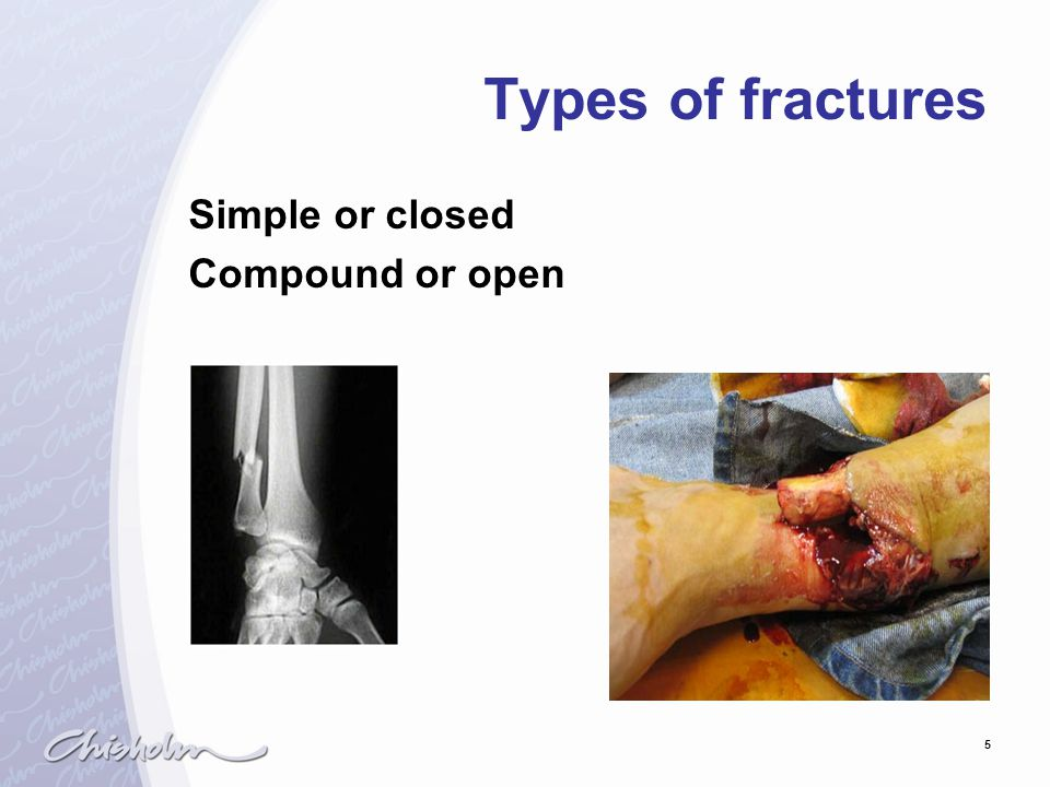 Types of fractures Simple or closed Compound or open