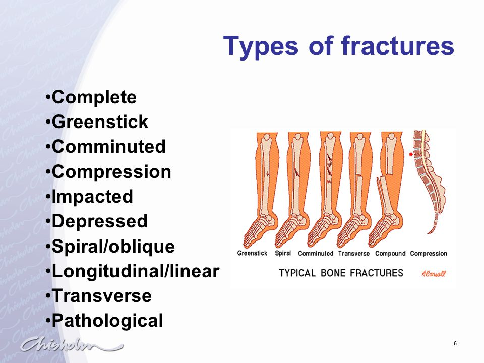 Types of fractures Complete Greenstick Comminuted Compression Impacted