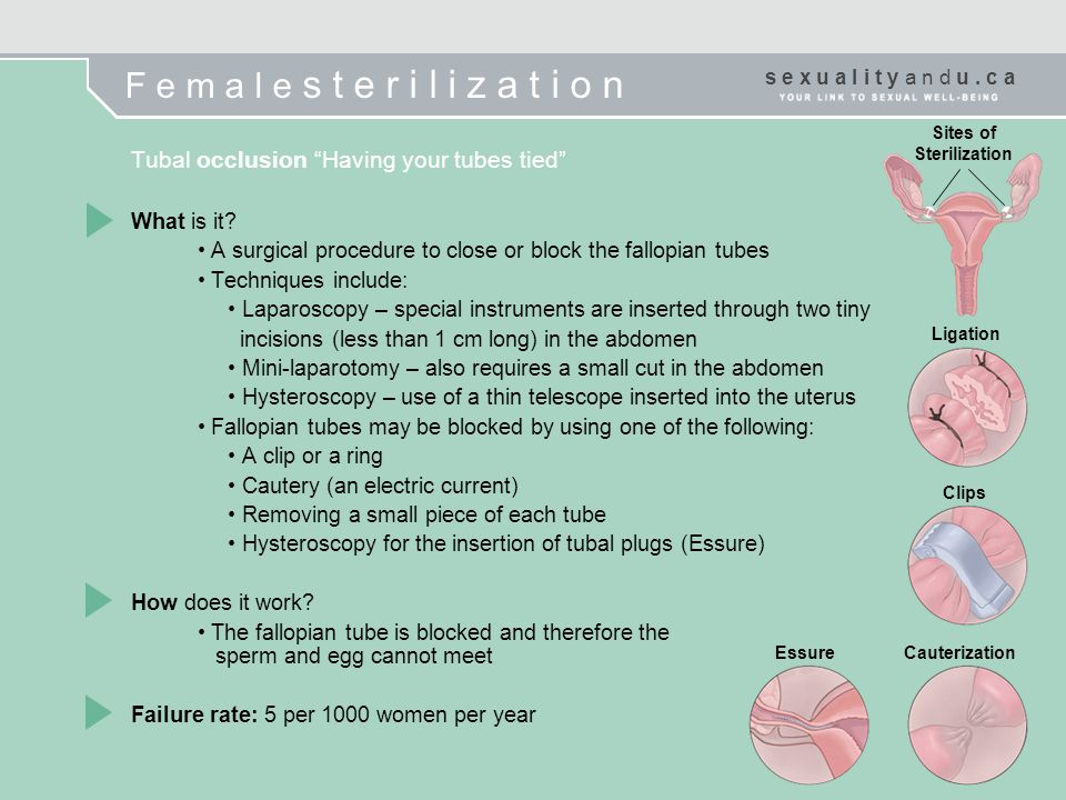 Sites of Sterilization