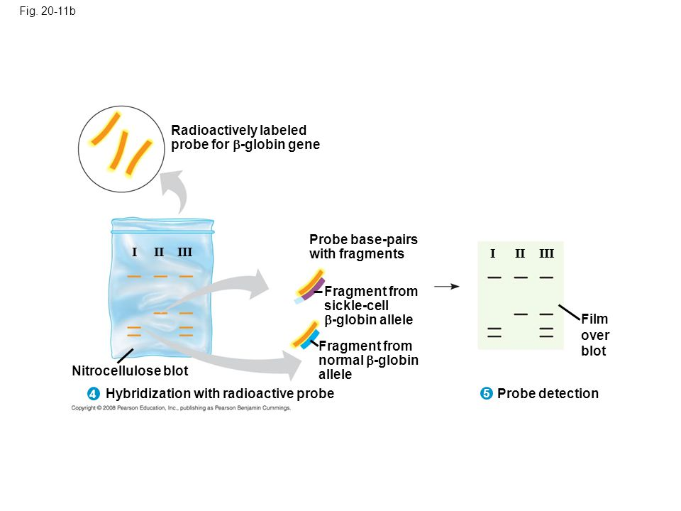 Radioactively labeled probe for -globin gene