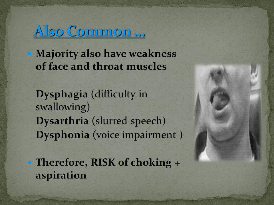 Also Common … Majority also have weakness of face and throat muscles