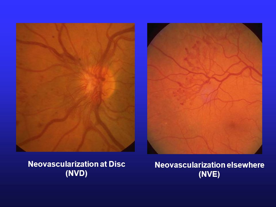 Neovascularization at Disc Neovascularization elsewhere