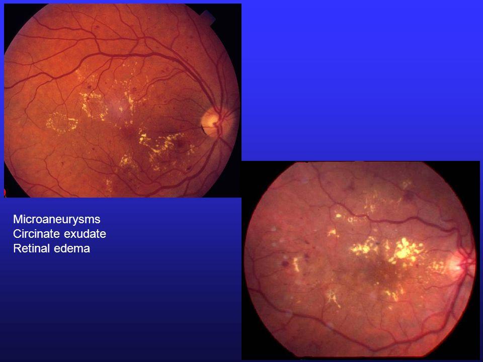 Microaneurysms Circinate exudate Retinal edema
