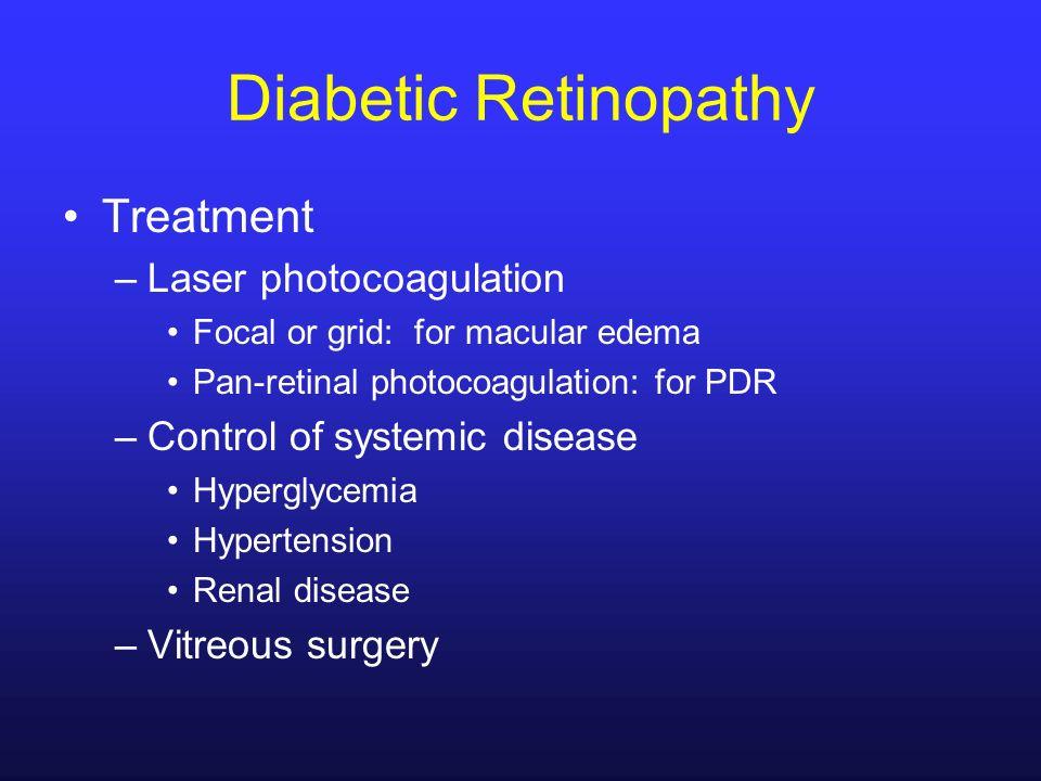 Diabetic Retinopathy Treatment Laser photocoagulation