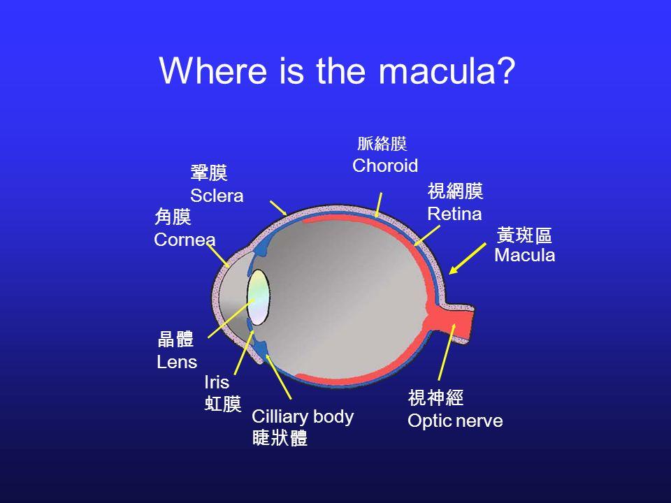 Where is the macula Choroid 鞏膜 Sclera 視網膜 Retina 角膜 Cornea 黃斑區 Macula