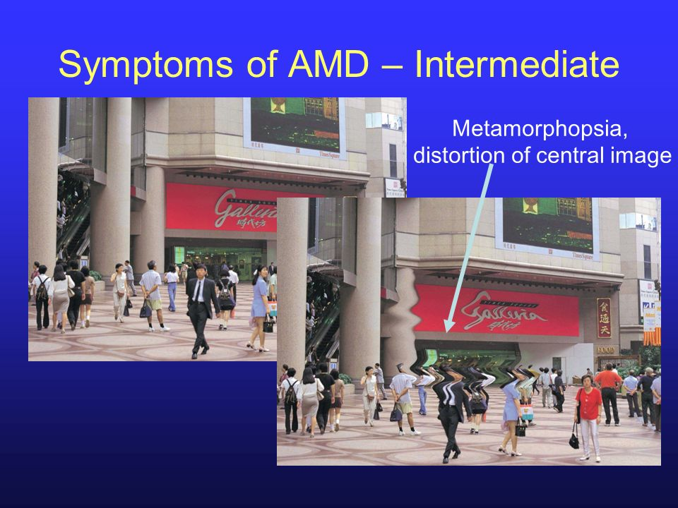 Symptoms of AMD – Intermediate