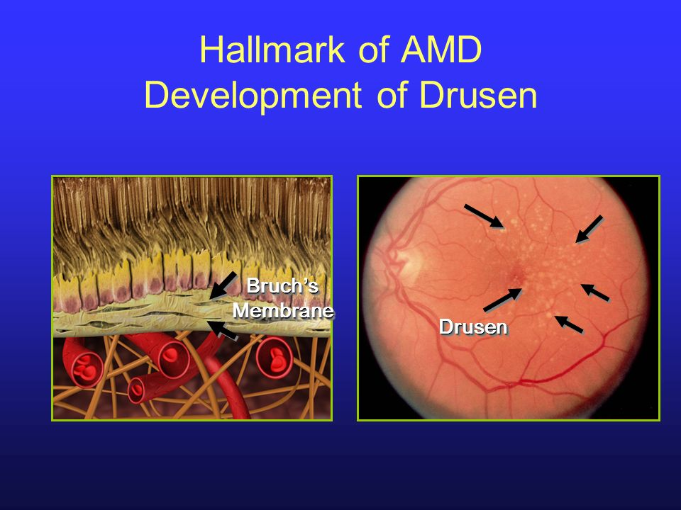 Hallmark of AMD Development of Drusen