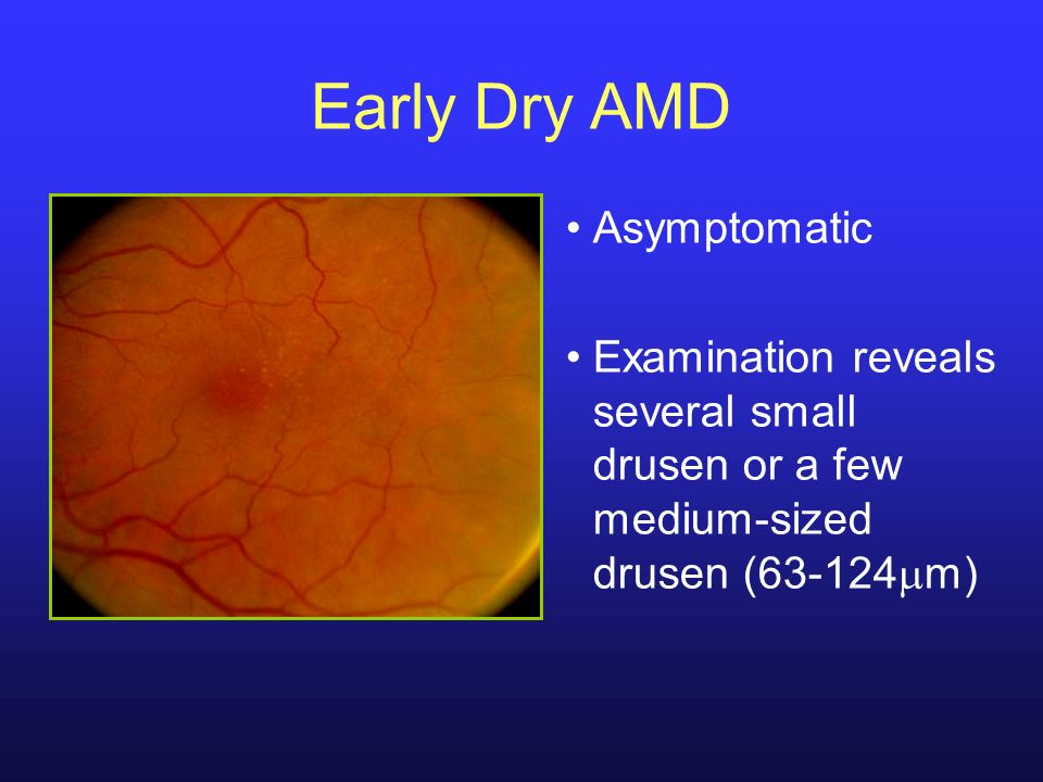 Early Dry AMD Asymptomatic