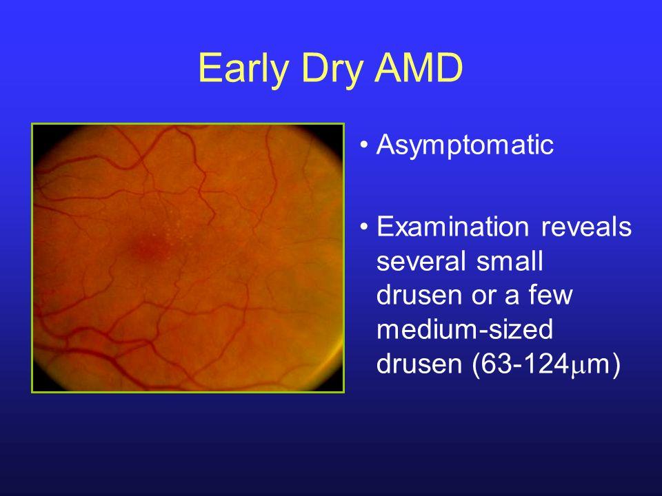 Early Dry AMD Asymptomatic