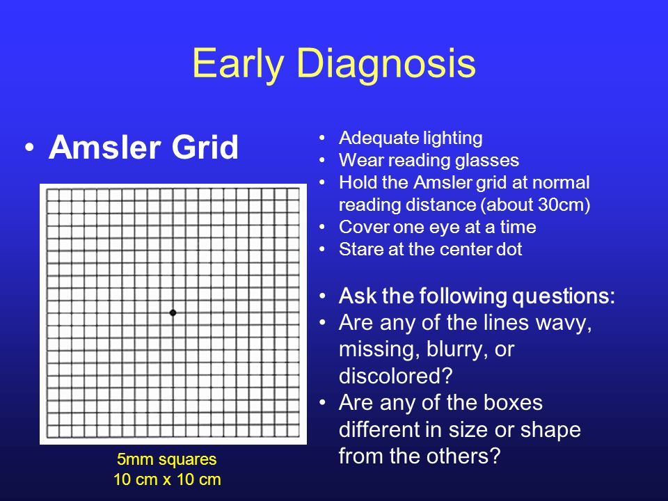 Early Diagnosis Amsler Grid Ask the following questions: