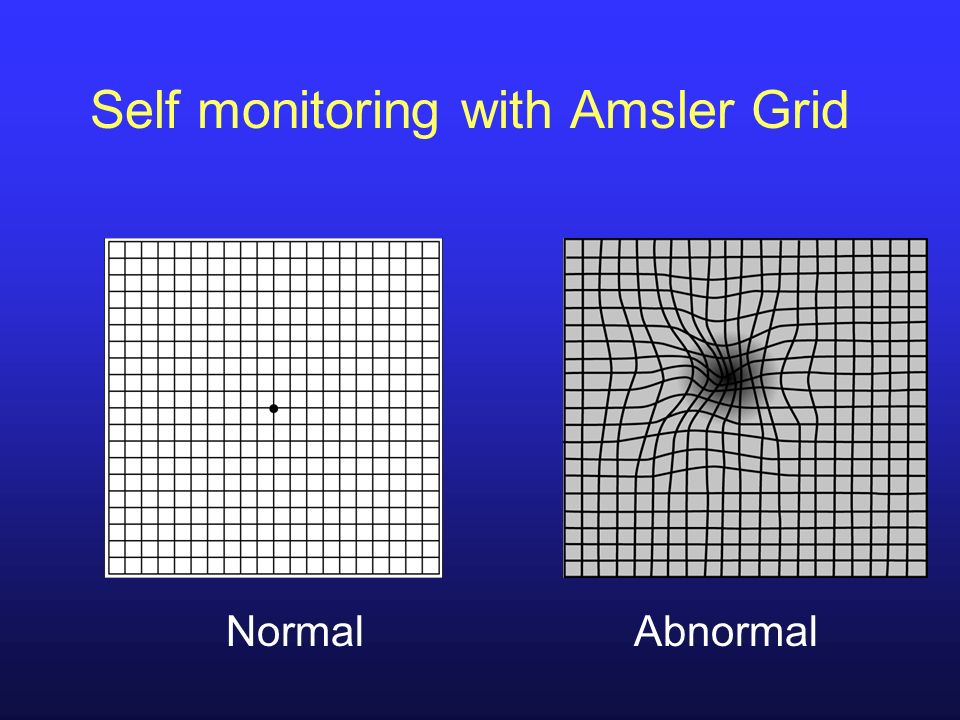Self monitoring with Amsler Grid
