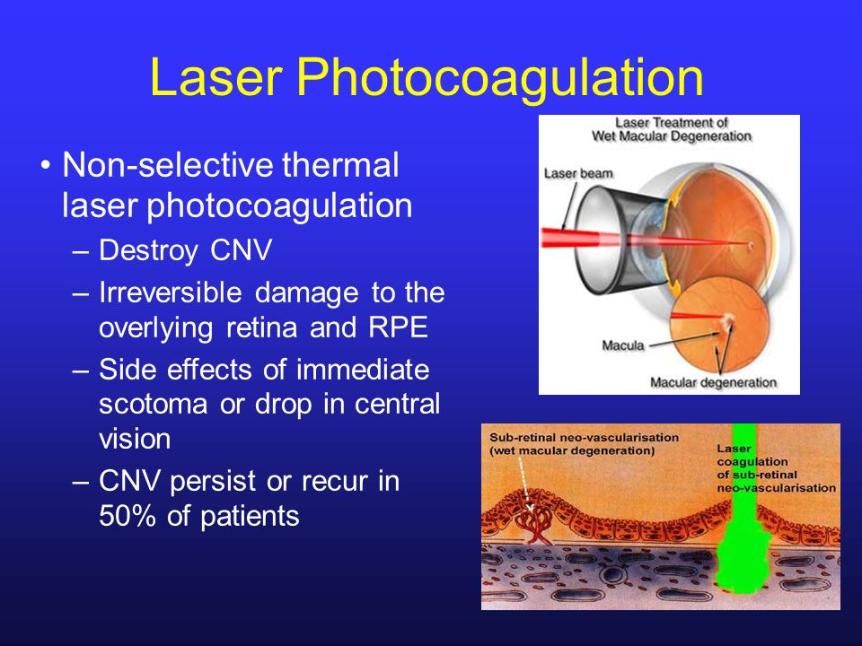 Laser Photocoagulation