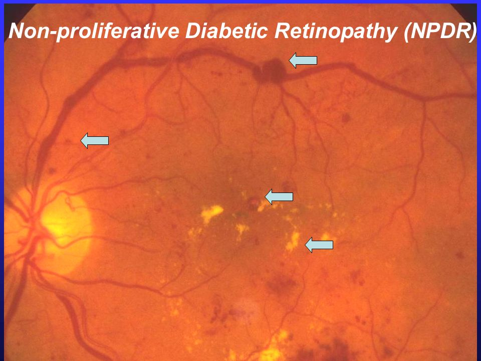 Non-proliferative Diabetic Retinopathy (NPDR)