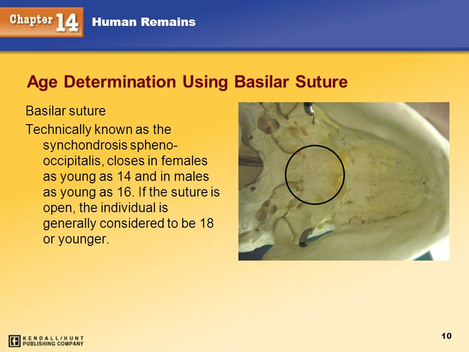 Age Determination Using Basilar Suture