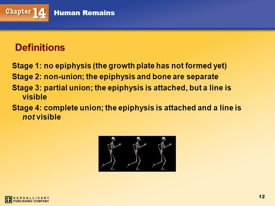 Chapter 12 Definitions. Stage 1: no epiphysis (the growth plate has not formed yet) Stage 2: non-union; the epiphysis and bone are separate.