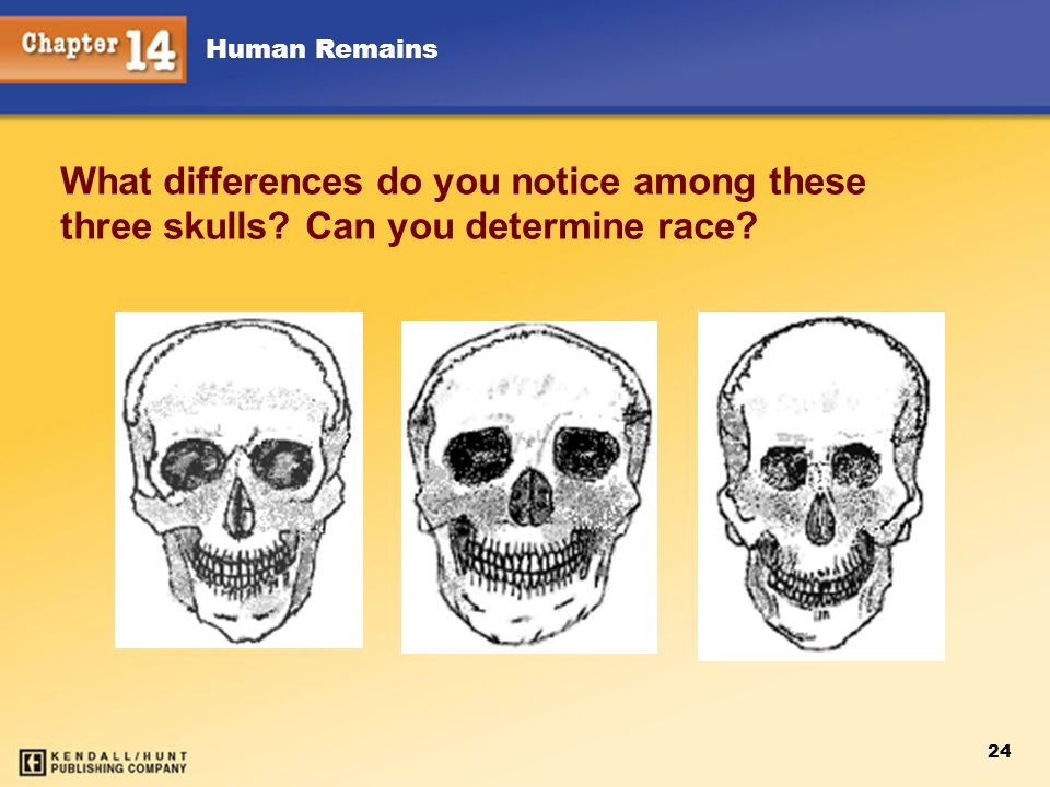 Chapter 12 What differences do you notice among these three skulls.