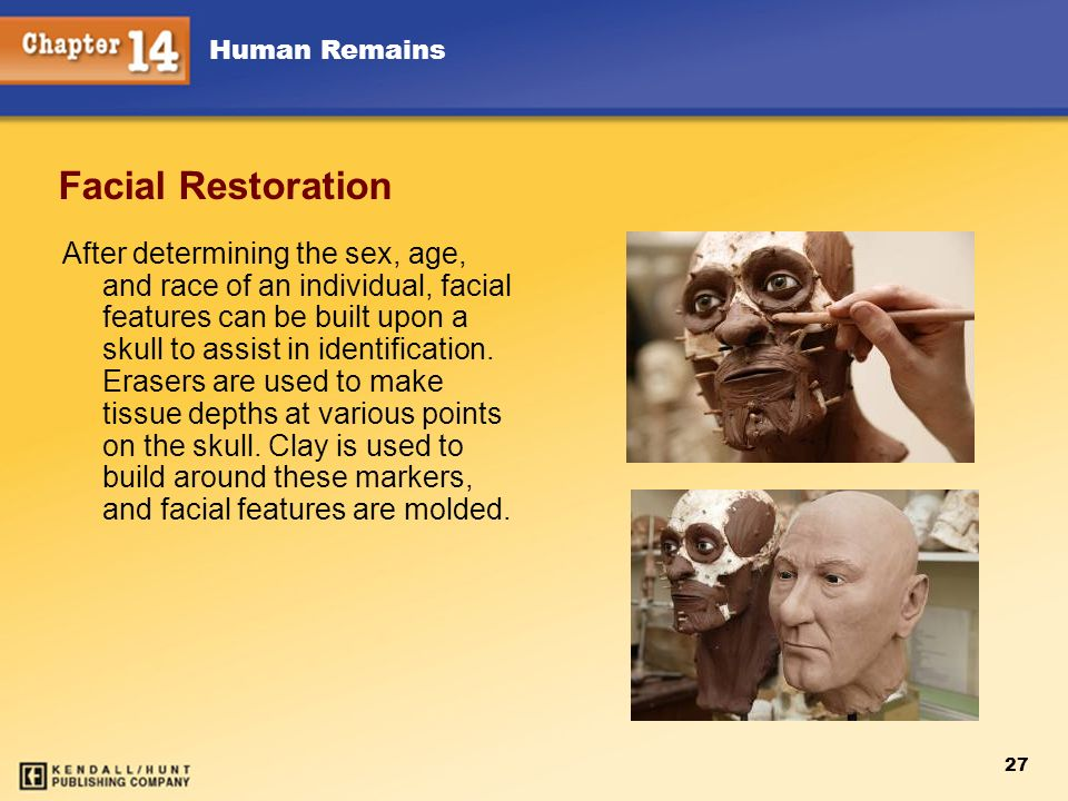 Chapter 12 Facial Restoration.