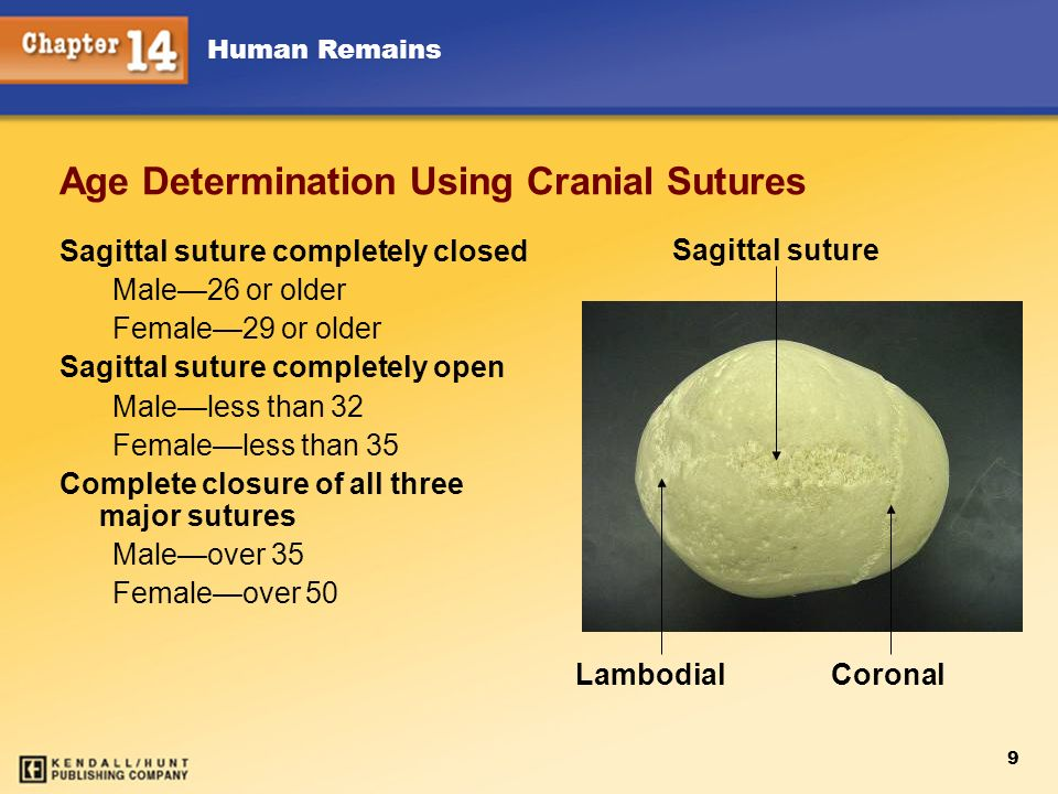 Age Determination Using Cranial Sutures